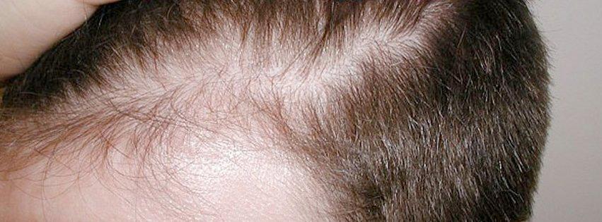 Hair Transplant Billig Hartransplantation