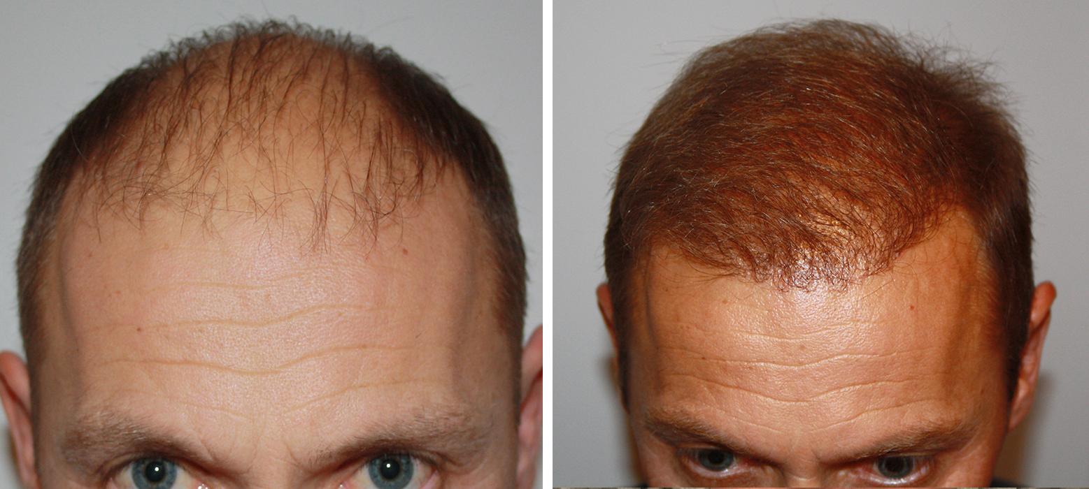 Hair Transplantation Results Billig Hartransplantation